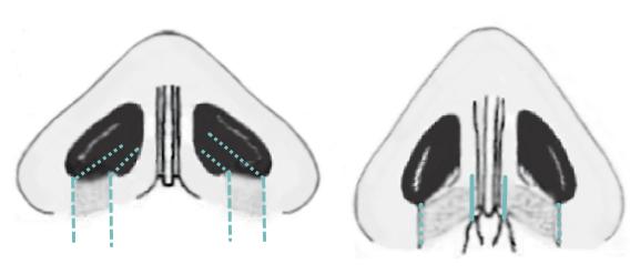 Резекция крыльев носа с фиксацией к колумелле