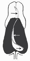 Схема S-образного искривления носовой перегородки