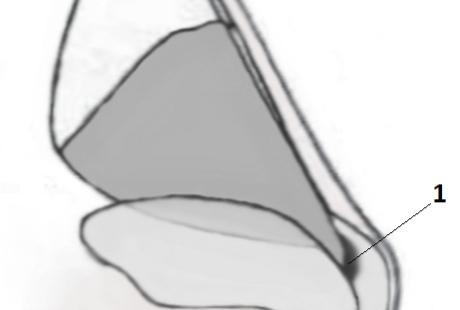 Положение наружного и внутреннего носовых клапанов.