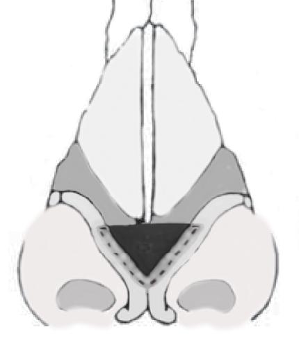 Укрепление спавшихся хрящей крыльев носа, сайт пластического хирурга Аганесова Г. А.
