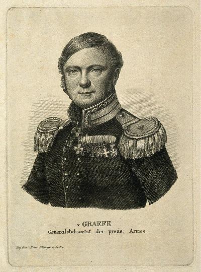 Карл Фердинанд фон Грефе, немецкий хирург, модифицировал итальянский способ пластики носа и впервые ввел названия операций ринопластики и блефаропластики.