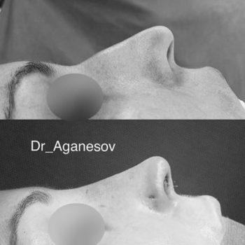 Риносептопластика опущенного кончика носа, пластический хирург Аганесов Г. А.