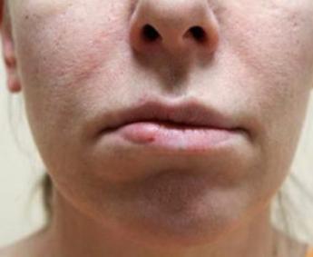 Деформация и асимметрия губ через 3 года после многократных инъекций филлеров