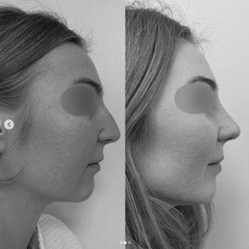 ринопластика с удалением горбинки носа, фото до и после операции, пластический хирург Аганесов Г. А.