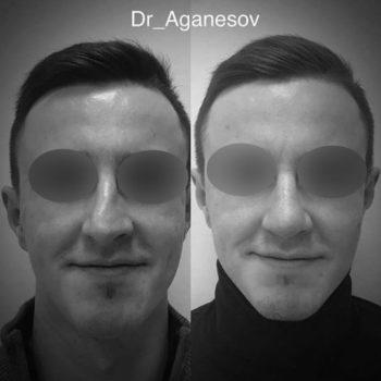 Боковое искривление спинки носа третьей степени до и после ринопластики, операция выполнена пластическим хирургом Аганесовым Г. А.