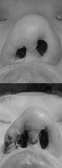 Деформация крыльев носа и асимметрия ноздрей, до и после операции, пластический хирург Аганесов Г. А.