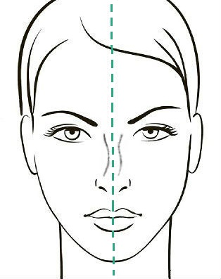 Девиация спинки носа 1 степени, сайт пластического хирурга Аганесова Г. А.