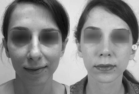 Эстетические недостатки и пластика кончика носа, пример из практики, пластический хирург Аганесов Г. А.