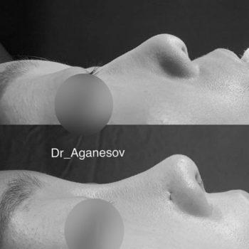 Низкая спинка носа при азиатской ринопластике, до и после операции, пластический хирург Аганесов Г. А.