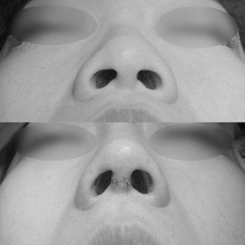Ринопластика с коррекцией крыльев носа, пластический хирург Аганесов Г. А.