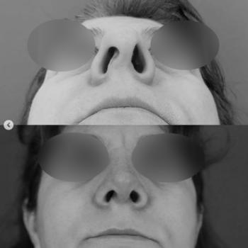Пластика крыльев носа как этап первичной ринопластики