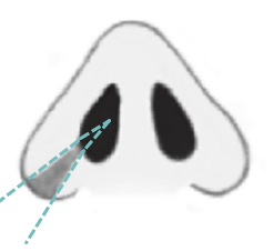 Резекция крыльев носа с участком дна ноздри, сайт пластического хирурга Аганесова Г. А.