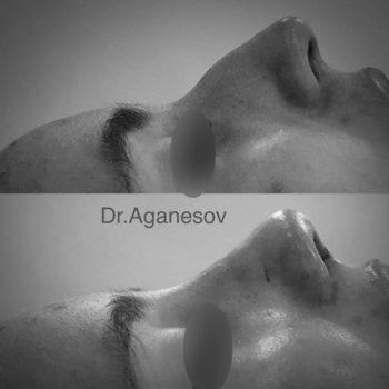 Ринопластика с удалением горбинки носа, пластический хирург Аганесов Г. А.