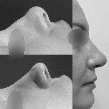 На фото нос до и после ринопластике, в процессе операции выполнено укрепление носовых клапанов для профилактики их функциональной недостаточности, сайт пластического хирурга Аганесова Г. А.
