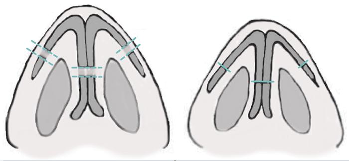 1. Уменьшение кончика носа, схема резекции крыльных хрящей. Сайт пластического хирурга Аганесова Г. А.