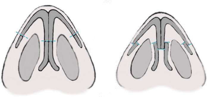 2. Уменьшение кончика носа, схема резекции крыльных хрящей. Сайт пластического хирурга Аганесова Г. А.