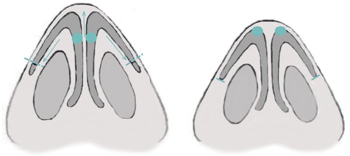 3. Уменьшение кончика носа, схема резекции крыльных хрящей. Сайт пластического хирурга Аганесова Г. А.