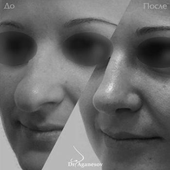 Уменьшение кончика носа, пластический хирург Аганесов Г. А.