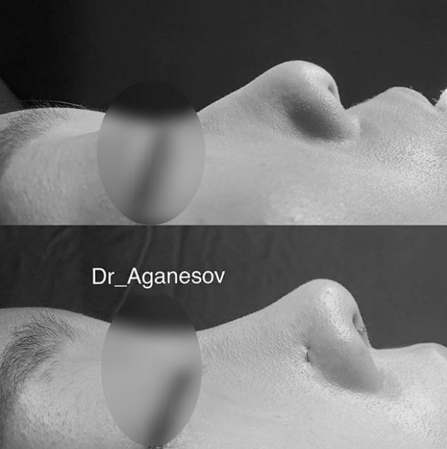 Увеличение кончика носа как один из этапов азиатской ринопластики, сайт пластического хирурга Аганесова Г. А.